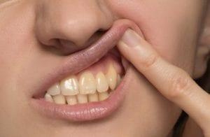 Gum Disease Dental Condition